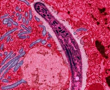 Malaria foto de Ute Frevert sursa Wikipedia